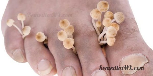 Pie de atleta o hongos en los pies